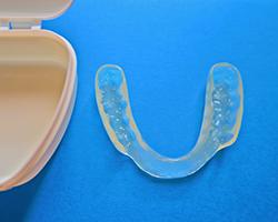 歯ぎしり、くいしばりから歯を守るためのマウスピース(スプリント)